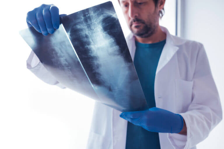 Doctor examining human x-ray of the human spine